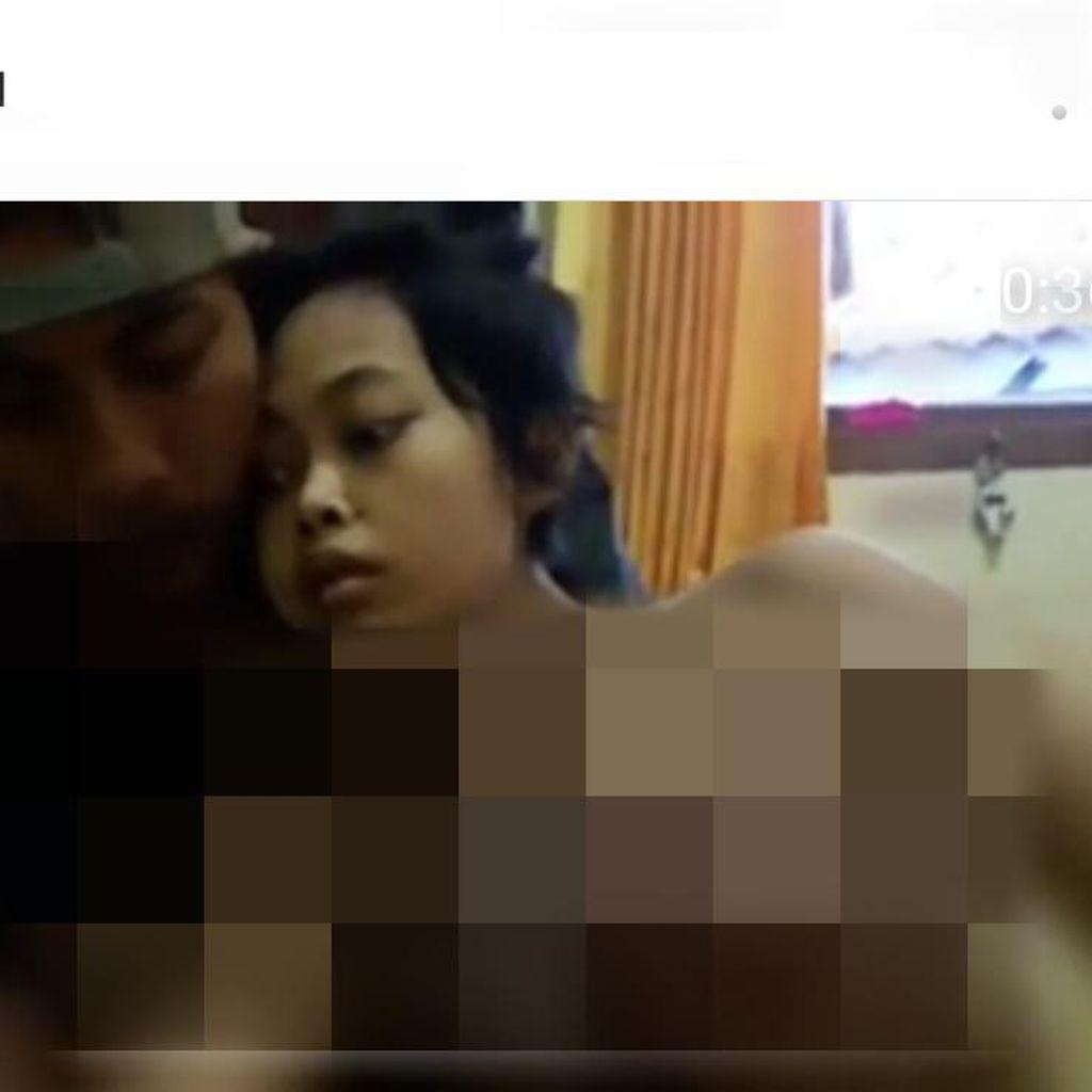 Kisah Viral Gadis Pengidap Kanker Payudara di Bogor Menanti Kemo