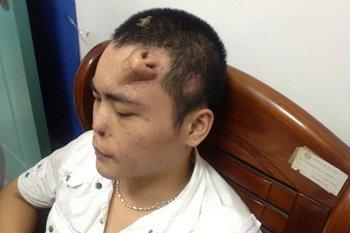 Inilah Xiaolian, Pria yang Punya Hidung di Dahinya