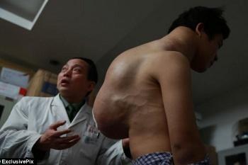 Yang Xiao, Pemuda yang Hidup dengan Tumor 10 Kg Selama Sepuluh Tahun