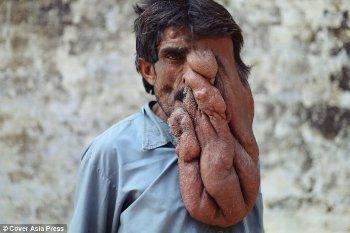 Chana Lal, Manusia Gajah yang Punya Tumor Belalai Seberat 4 Kg