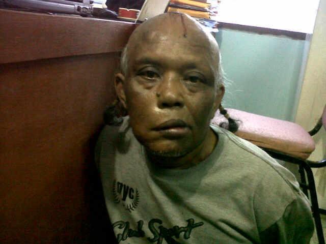 Polisi Yakin Masih Ada Korban Klewang yang Enggan Melapor