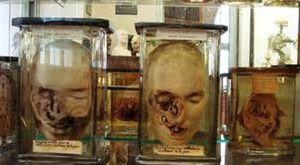 Ribuan Koleksi Menyeramkan di Museum Kedokteran Paris