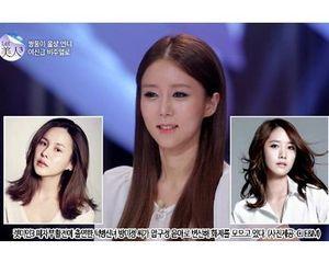 Sering Dibully, Wanita Ini Operasi Plastik dan Jadi Mirip Yoona SNSD