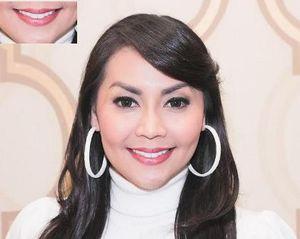 Veneer Gigi Kelinci Jadi Tren di Kalangan Selebriti Indonesia