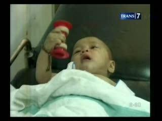 Aisyah, Bayi yang Dipotong Ibunya Kini Membaik