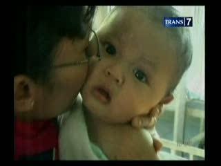 Bayi yang Dipotong Ibu Membaik