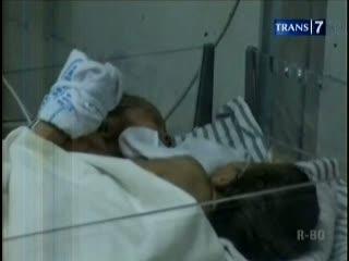 Bayi Kembar Siam Jalani Operasi Jantung