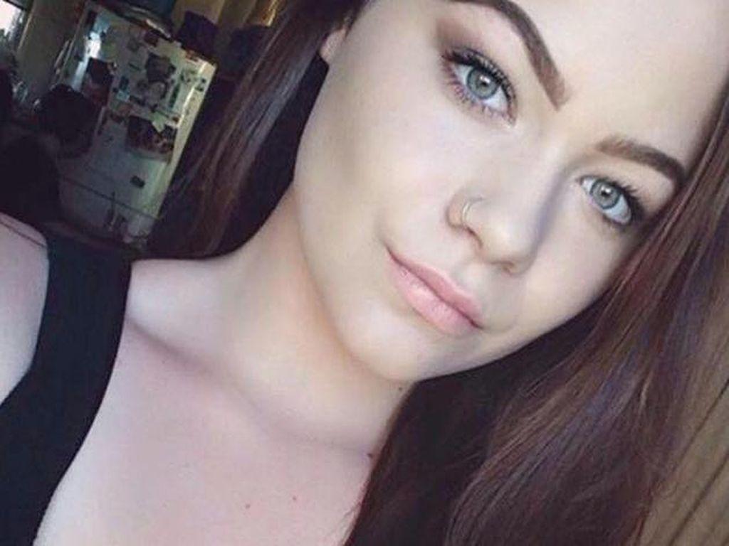 Coba Warnai Alis, Mata Remaja Ini Bengkak dan Hampir Buta