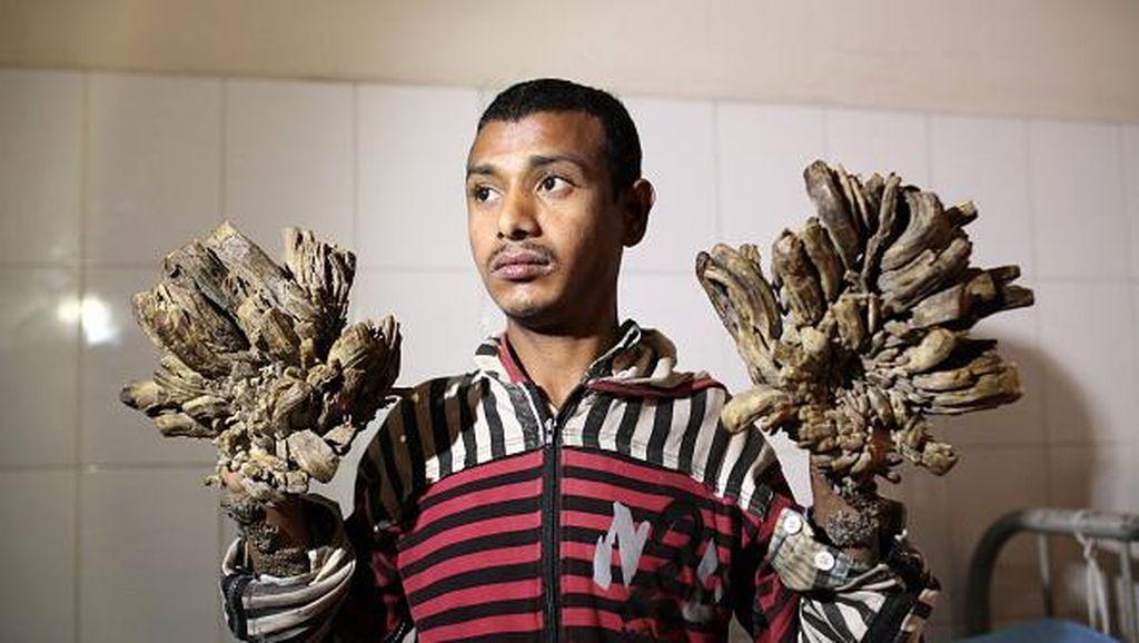 Foto Para Pengidap Sindrom Manusia Pohon Ini Bikin Kita Bersyukur