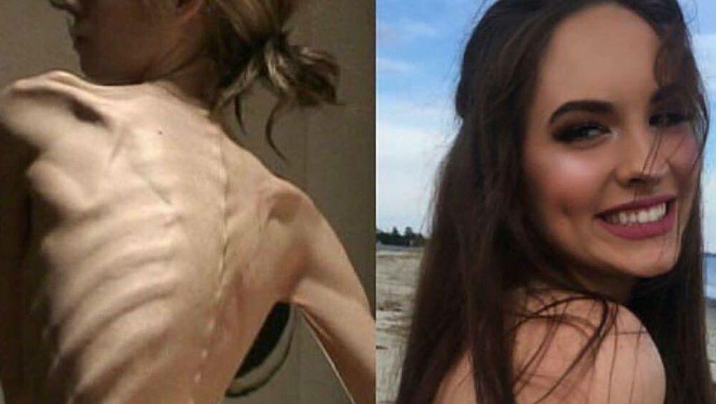 Foto Transformasi Para Wanita Anoreksia: Dari Kurus Kering Kembali Berisi