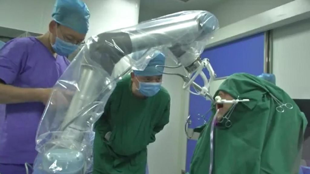 Foto: Prosedur Pemasangan Implan Gigi oleh Robot di Cina
